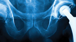 DePuy Hip Implants